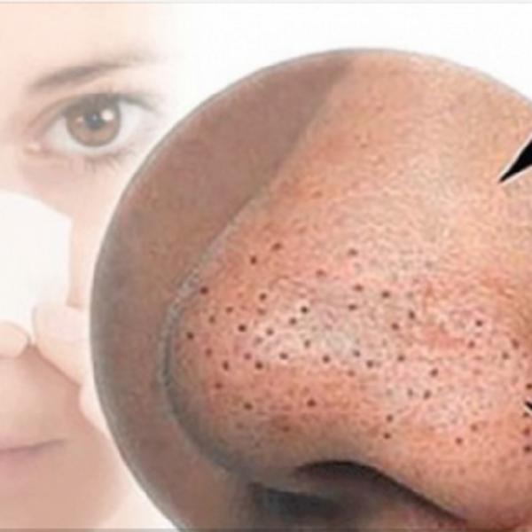 Чистка лица в домашних условиях от черных точек