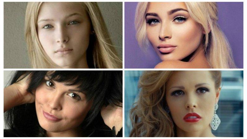 Шесть российских красоток до и после пластики
