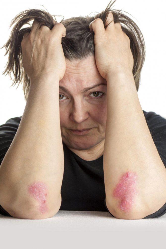 Псориаз волосистой части головы: лечение, симптомы и причины