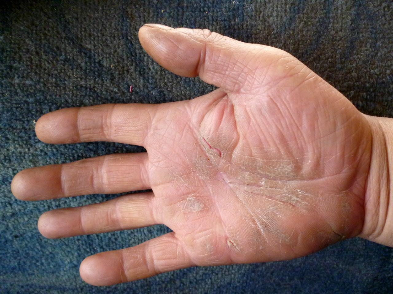 Причины сухости кожи