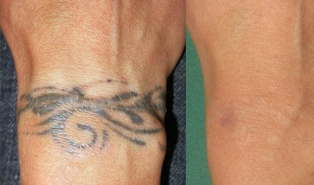 Как безопасно свести татуировку без шрамов