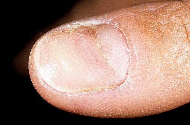 Срединная каналообразная ониходистрофия