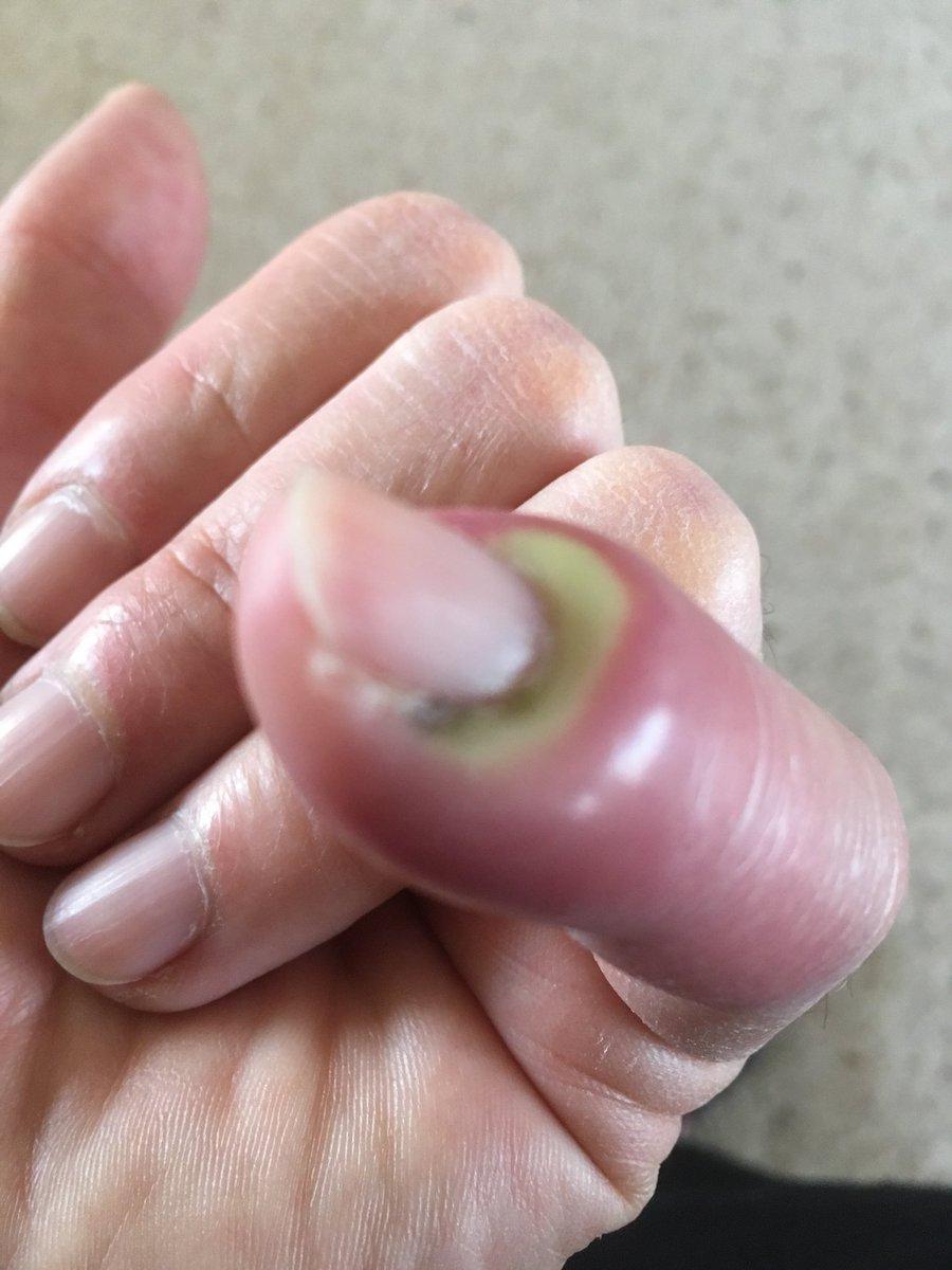 Панариций на пальце: лечение в домашних условиях
