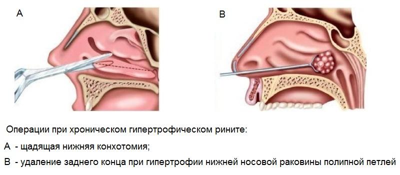 Вазотомия носовых раковин - что это такое вазотомия носовых раковин показания к операции, описание процедуры и эффективность