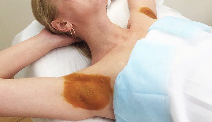 Гипергидроз тела лечение в домашних условиях. избавьтесь навсегда от повышенной потливости: гипергидроз — не приговор! виды и причины патологии