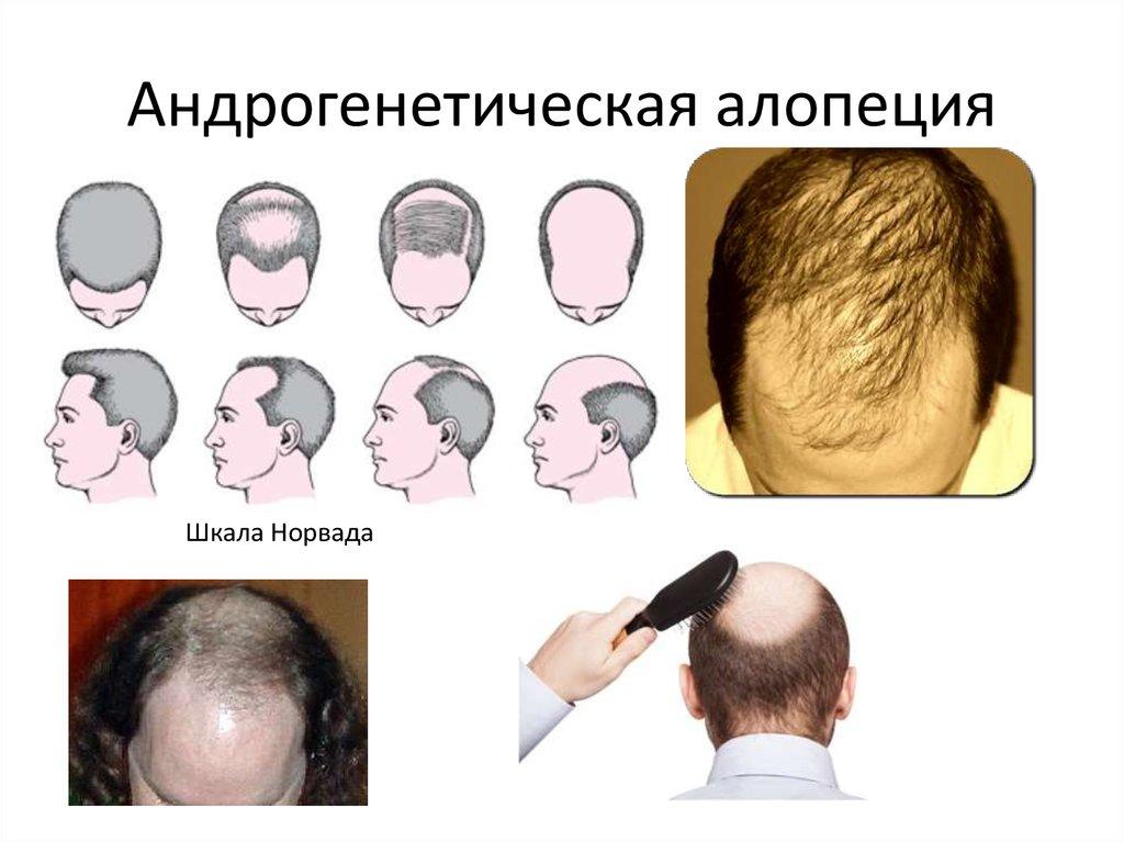 Гормоны и здоровье волос, часть 2: андрогенетическая алопеция у женщин