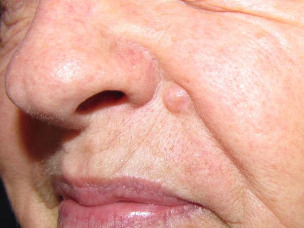 Рак кожи. причины, симптомы и признаки, диагностика и лечение рака