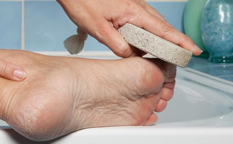 Как избавиться от мозолей на ногах | домашние средства от мозолей и натоптышей