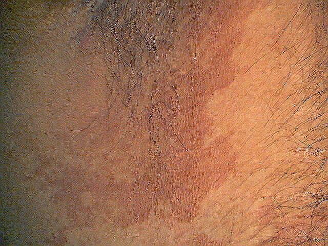 Эритразма: лечение эритразмы у женщин и мужчин, лечение паховой эритразмы, профилактика