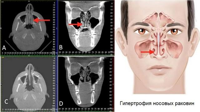 Лазерная вазотомия нижних носовых раковин