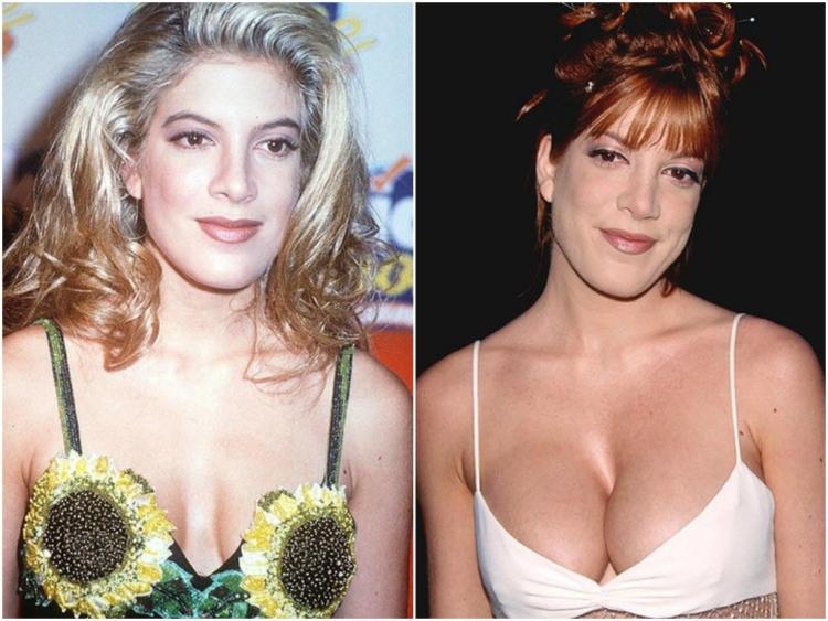 Увеличение груди. фото до и после маммопластики, особенности ее проведения. крема, упражнения, массаж, народные средства