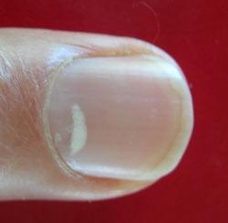 Черные точки под ногтями. первопричины проявления
