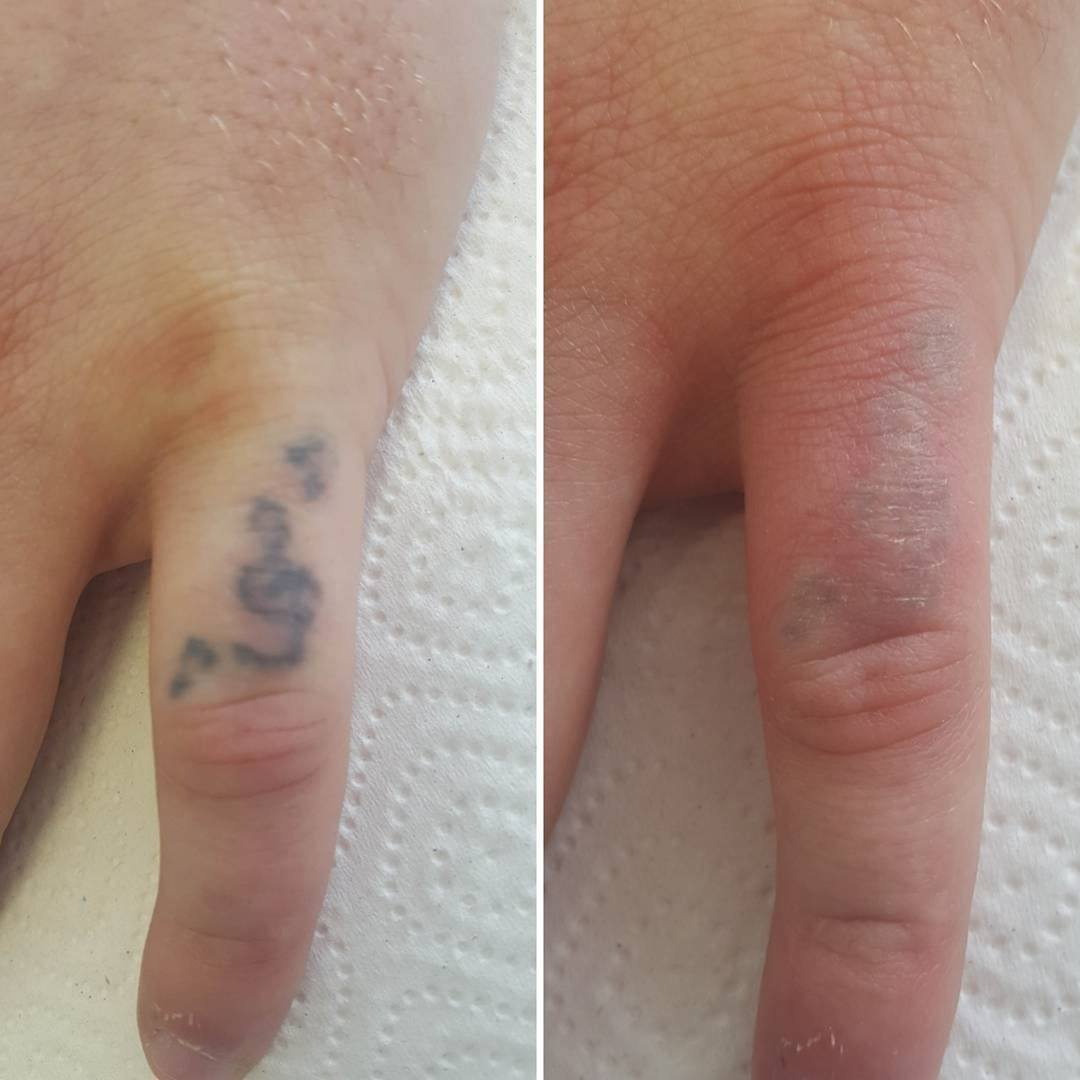 Лазерное удаление татуировки: сколько стоит процедура и где вывести старую наколку