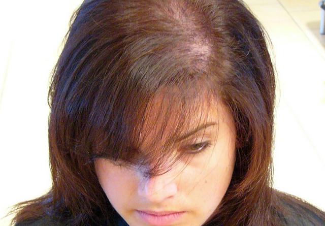 Диффузная алопеция - признаки, причины и лечение у женщин