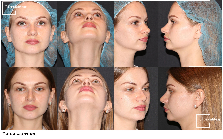 Искривление носовой перегородки: причины и лечение операцией и без