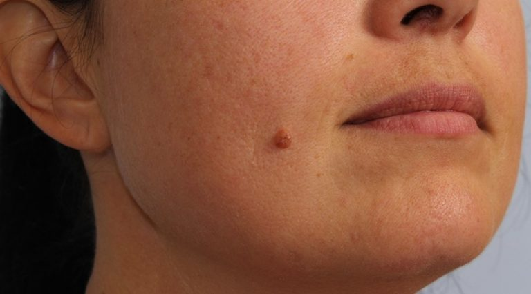 Образования на коже (лица, рук, стоп, шеи), похожие на бородавки: что это такое, лечение уплотнений