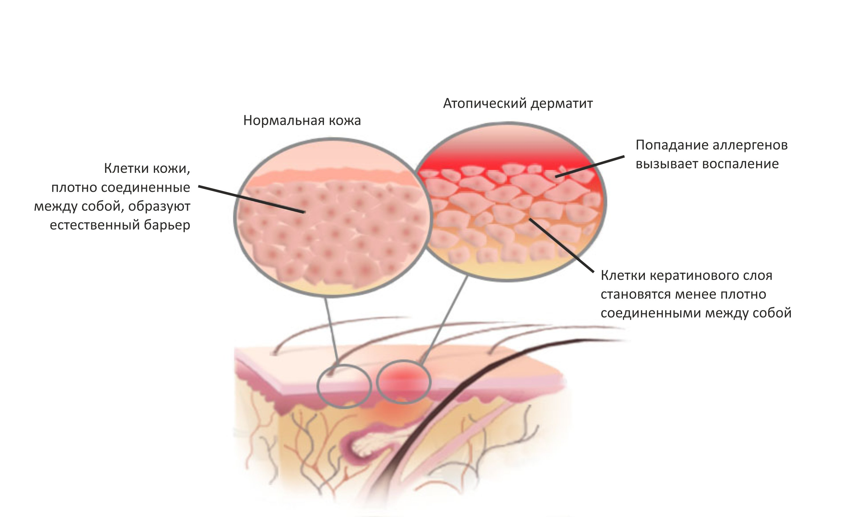Нейродермит: причины, симптомы, диагностика и лечение