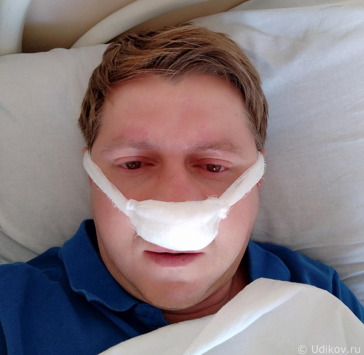Искривление носовой перегородки и операция – как это было