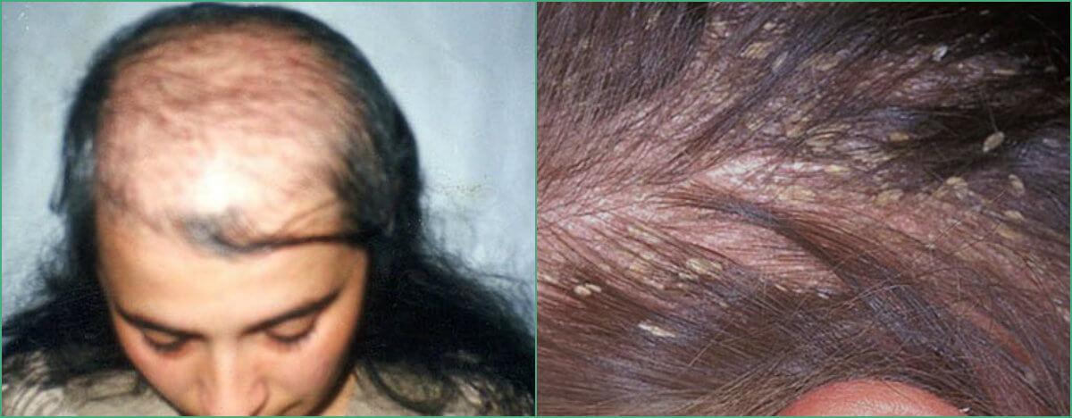 Зуд и жжение кожи головы выпадение волос