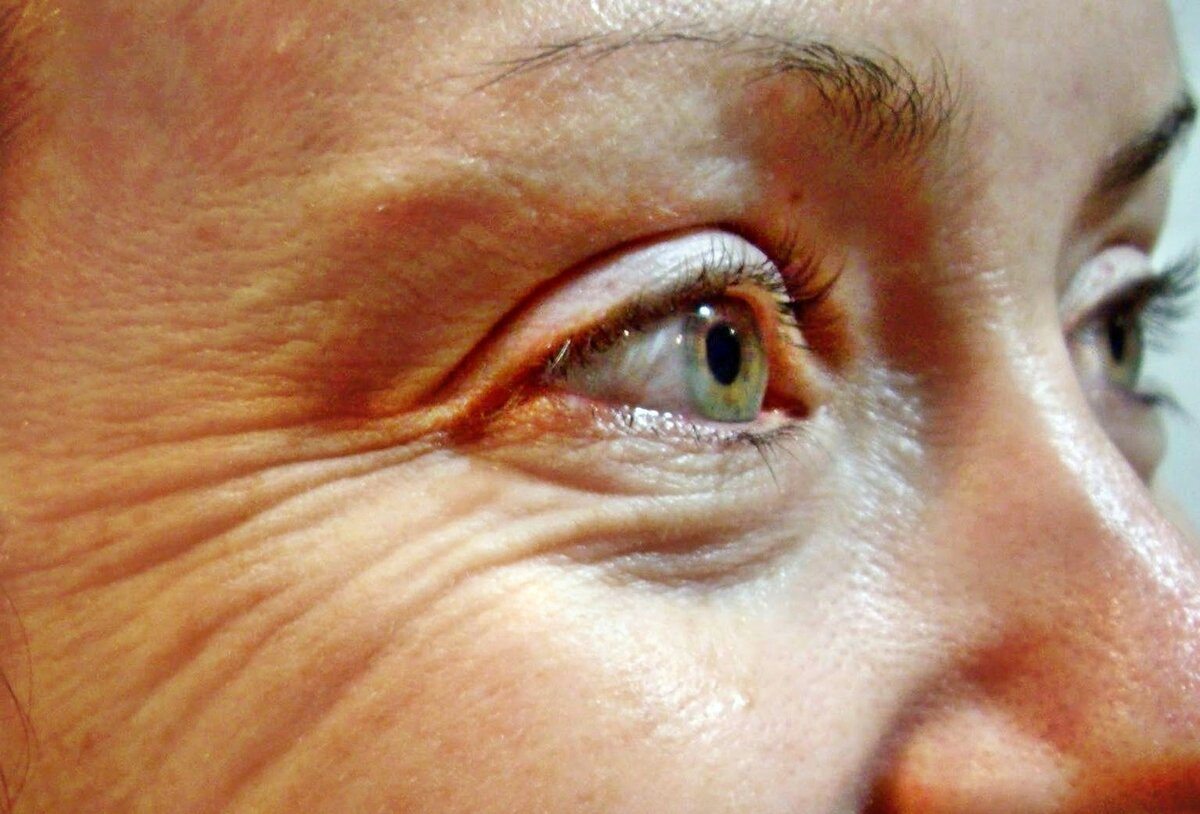 Как убрать морщины под глазами самостоятельно: лучшие косметические и народные средства