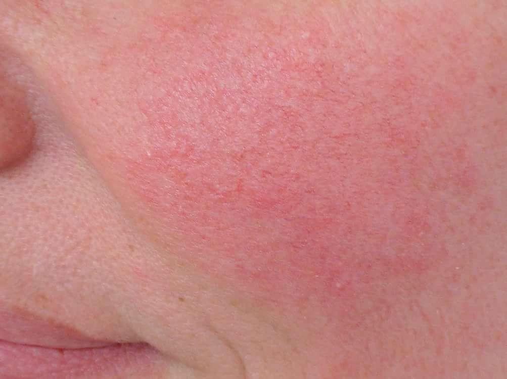 Покраснение кожи лица – классификация, причины (физические, патологические), лечение, средства от покраснения, фото