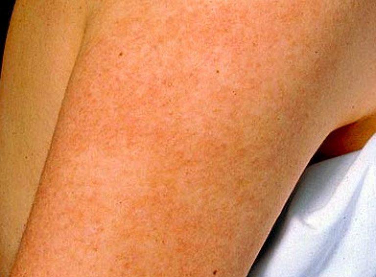 Себорейный кератоз: фото кожи, причины, лечение, гистология