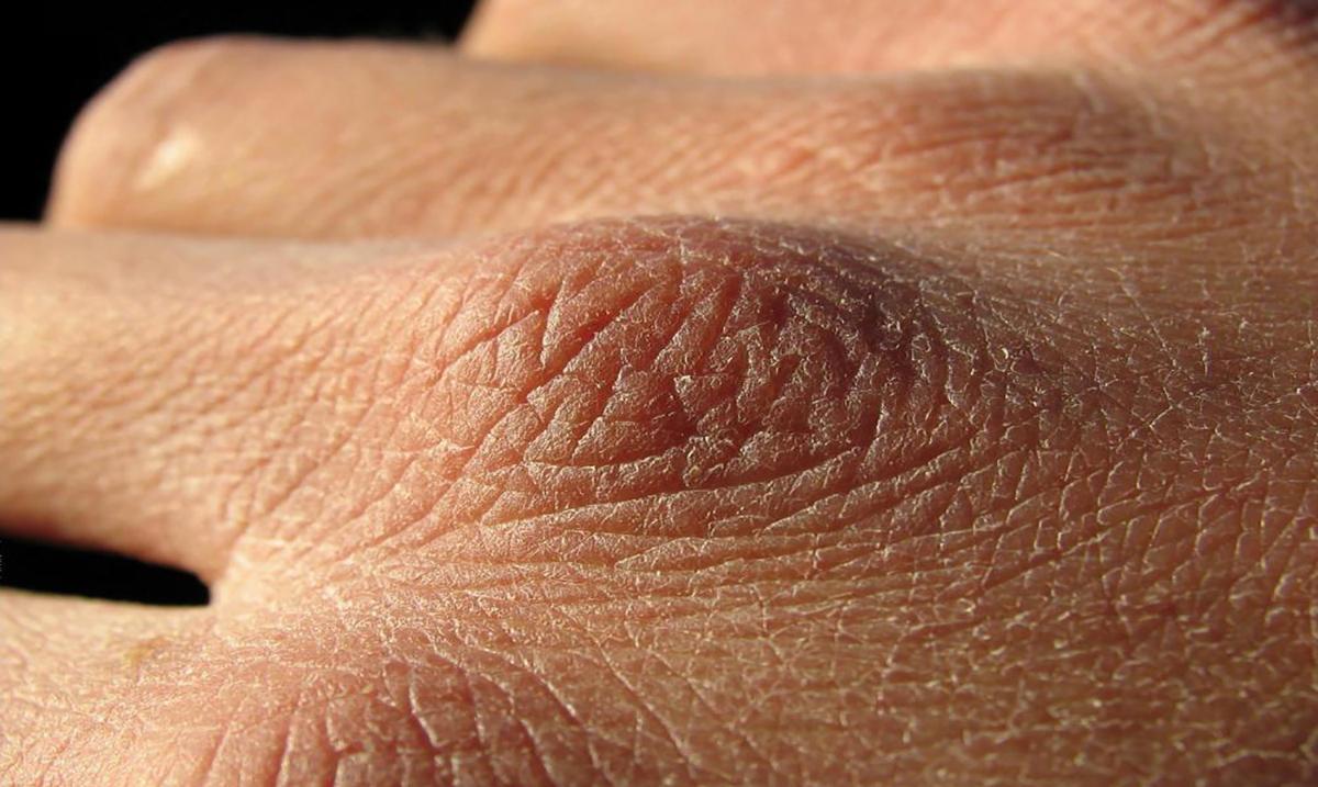 Шелушение кожи на руках — что делать?