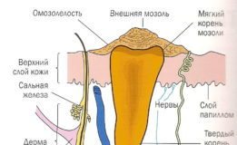 Сухая мозоль. причины, профилактика, лечение патологии :: polismed.com