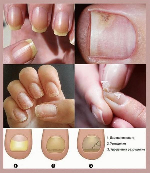 Ониходистрофия ногтей у женщин