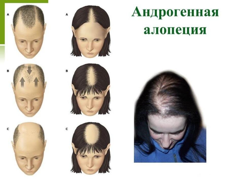 Андрогенная алопеция у женщин и мужчин: что это такое, симптомы, лечение