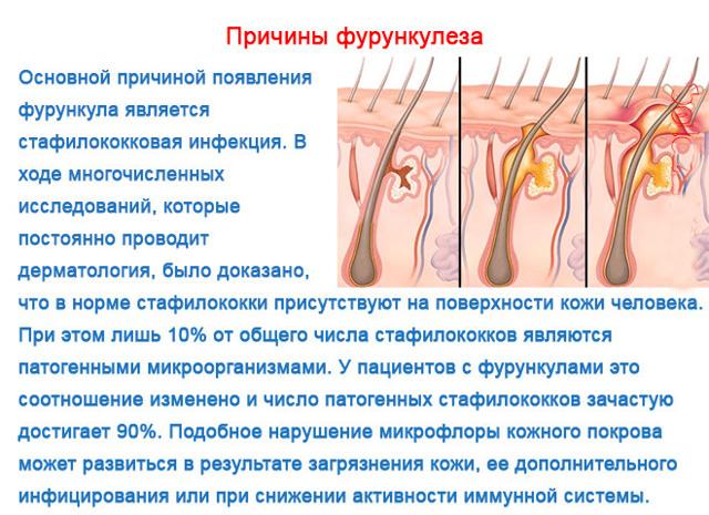 Фурункулез (фурункул) | симптомы | диагностика | лечение - docdoc.ru