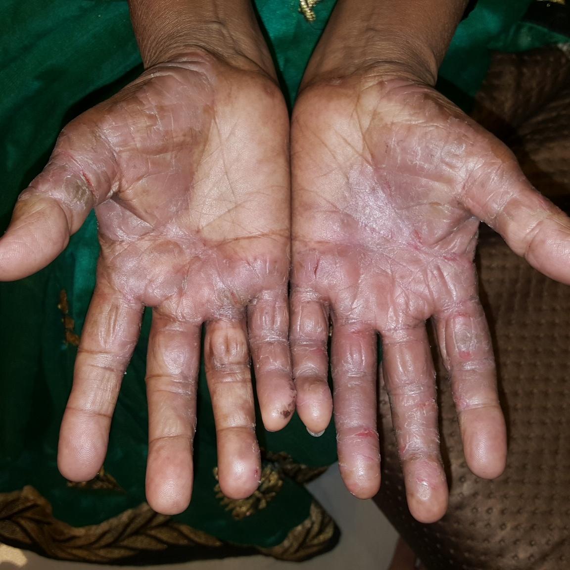 Псориаз на лице — причины, симптомы, лечение