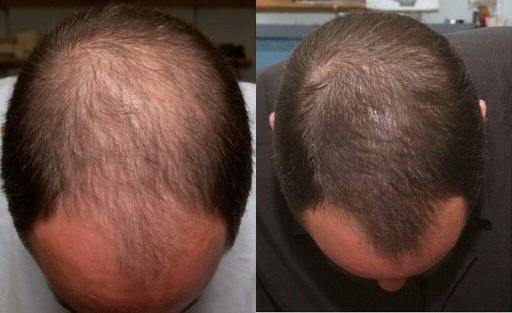 Эффективные рецепты, как бороться и как избавиться от облысения. способы и методы лечения алопеции. лучшие лекарства, препараты и методы борьбы против облысения в лечении аллопеции и выпадения волос