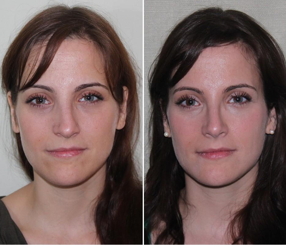 Лазерная ринопластика носа - цена и фото операции