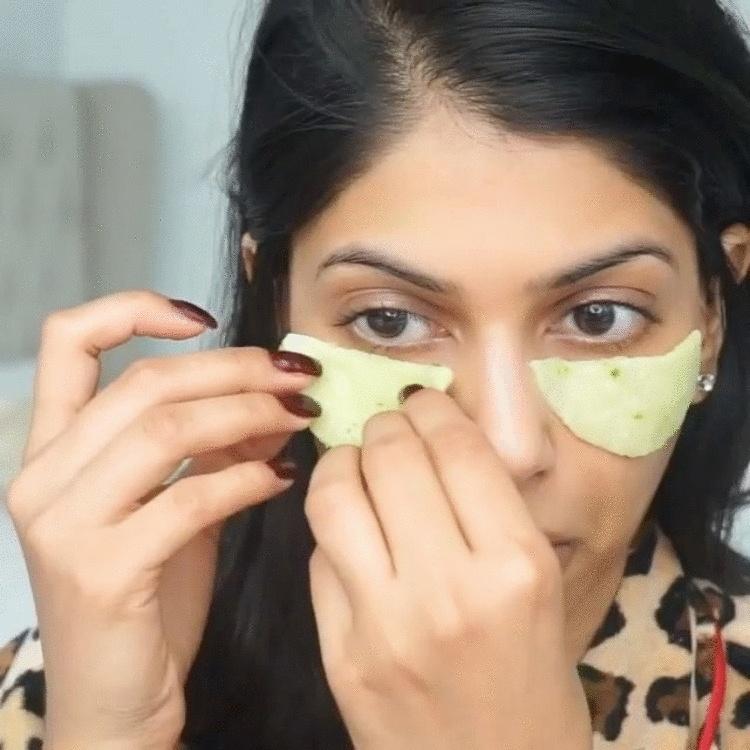 Как быстро и эффективно убрать синяк под глазом: лучшие методы