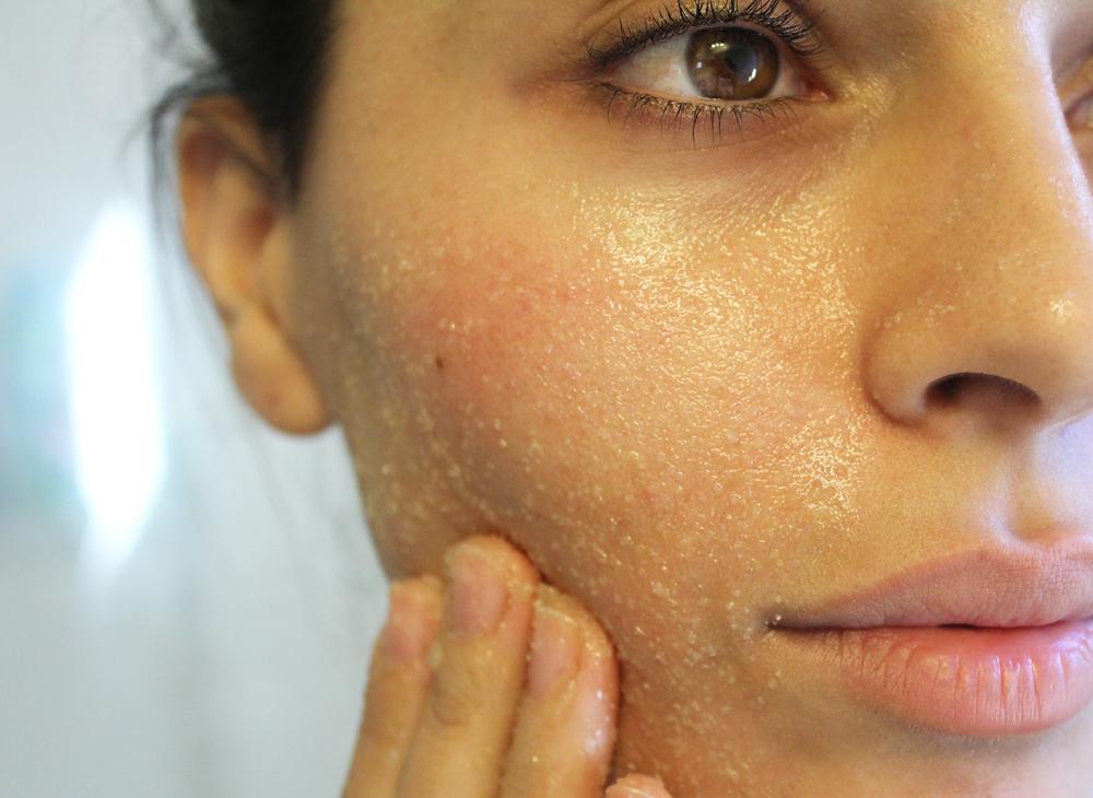 Жирная кожа лица: что делать в домашних условиях, как ухаживать зимой и летом, в юности и после 40 лет