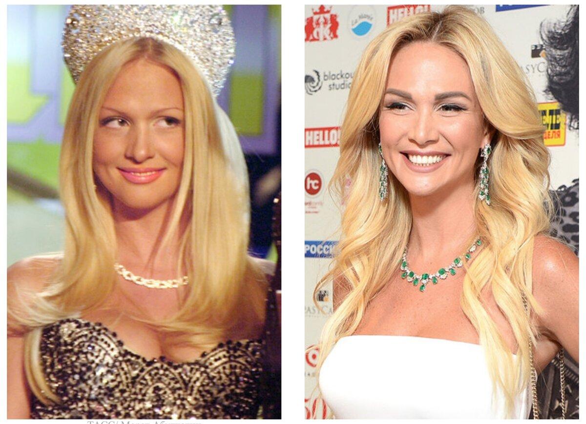 Удивительные фотографии знаменитостей до и после пластики!