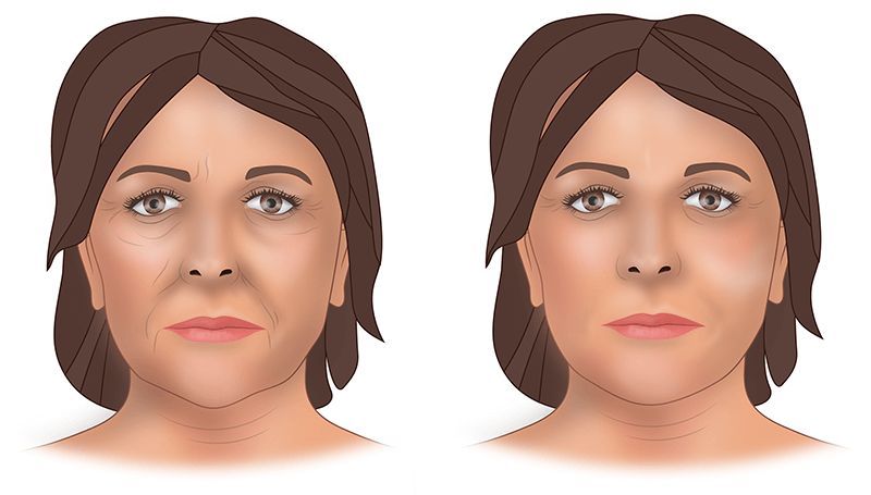 Липофилинг — что это такое, цена, отзывы, фото. липофилинг грудных желез, ягодиц, лица, губ, глаз, тела — как проводится процедура, результат, последствия, реабилитация