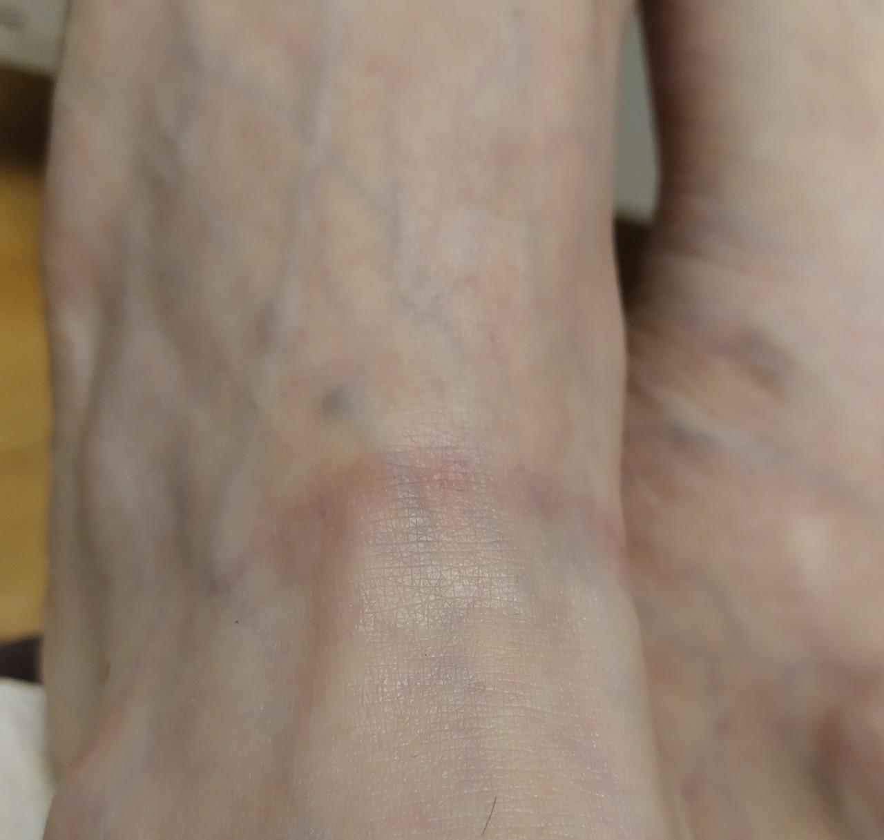 Белые растяжки на ногах
