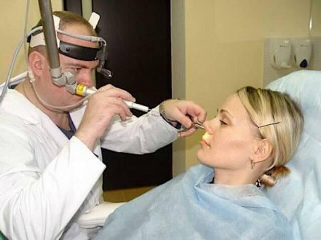 Вазотомия: суть операции, показания, виды (лазерная, радиоволновая, хирургическая)