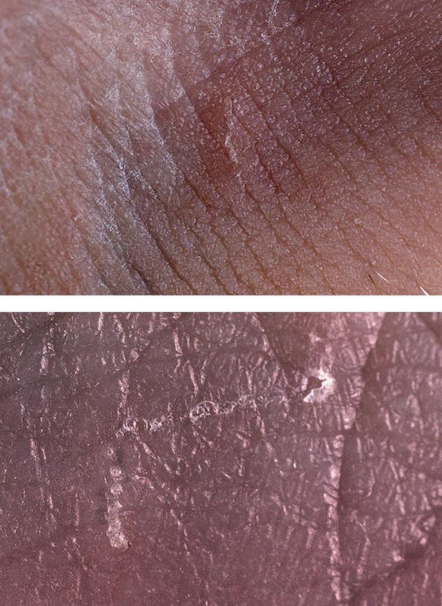 Как выглядит чесотка у человека — лечение, признаки и фото