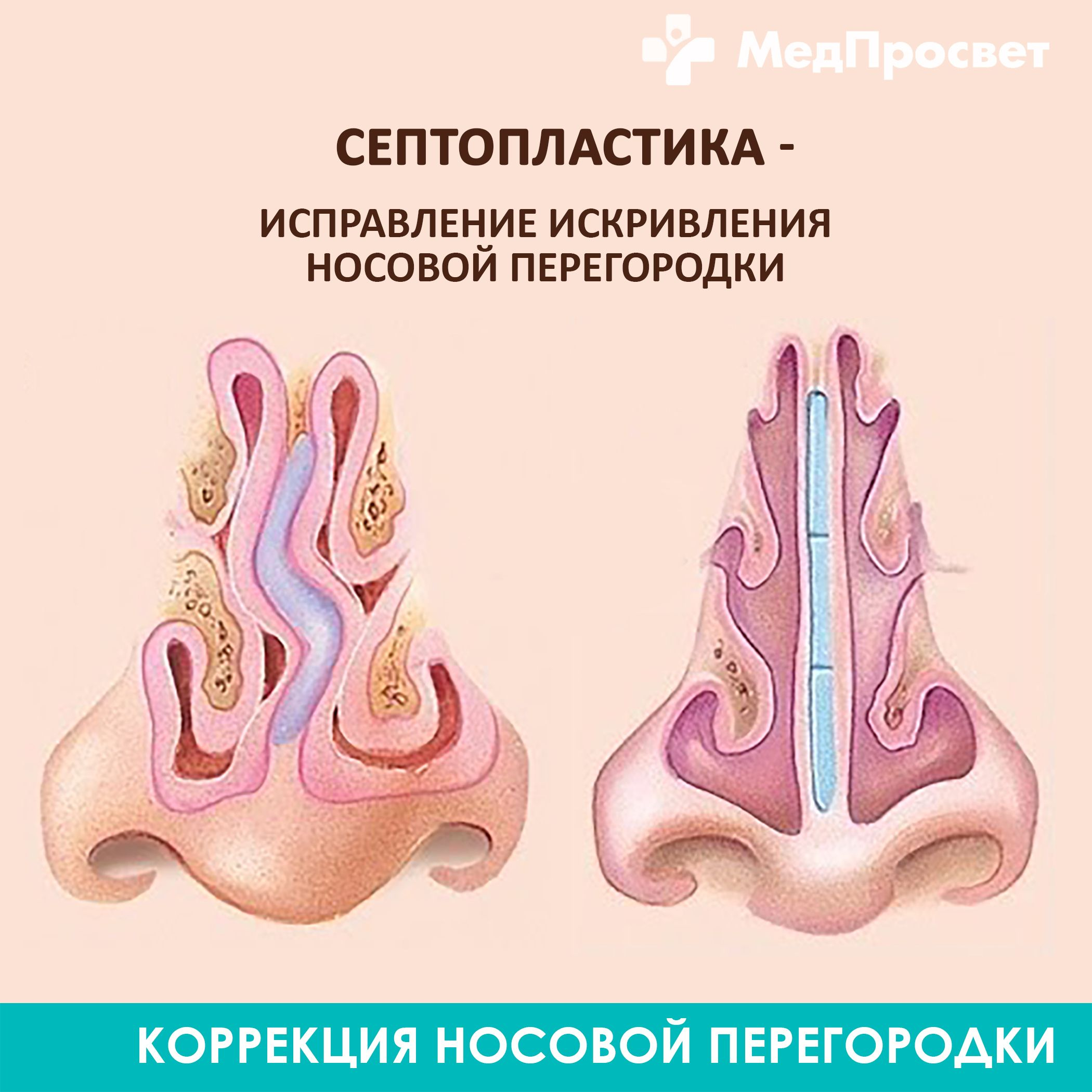 Септопластика носовой перегородки: показания и противопоказания к проведению операции