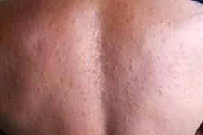 Розовый лишай у человека симптомы, лечение, фото