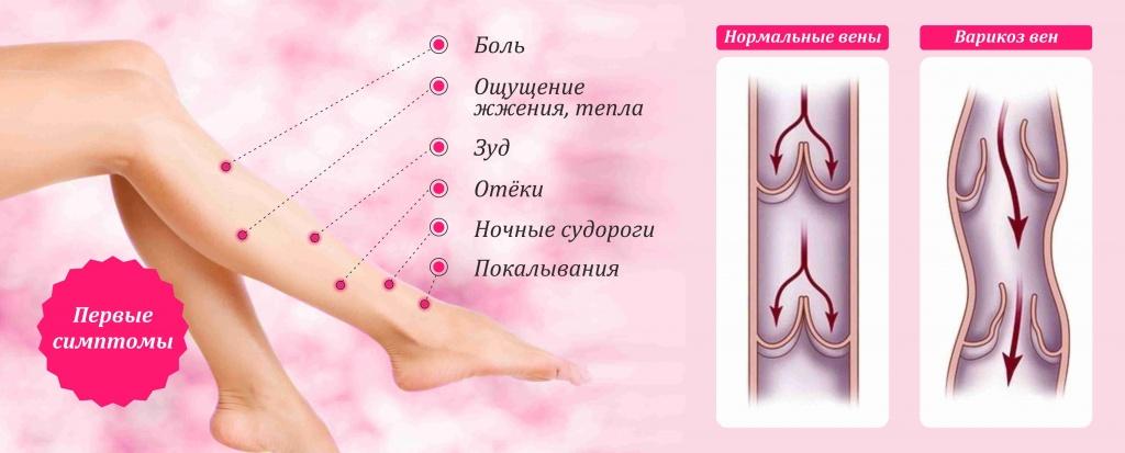 Первые симптомы варикозного расширения вен на ногах