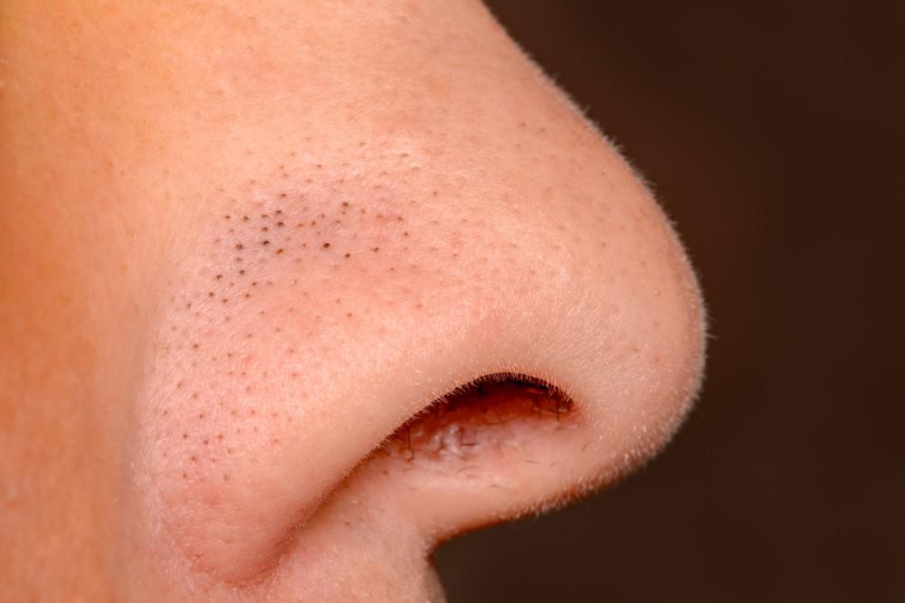 Как удалить черные точки на лице в домашних условиях за 1 день