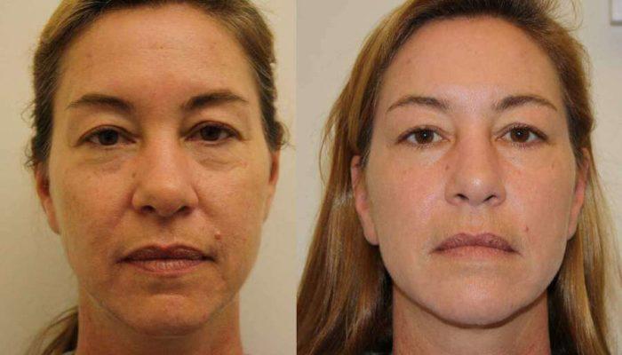 Филлеры – что это такое в косметологии, и как проводят процедуру устранения морщин?