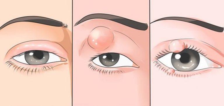 Ячмень на глазу: как вылечить его быстро, без последствий и не выходя из дома