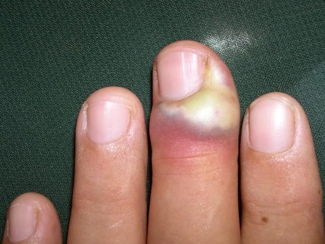 Панариций пальца на руке: лечение, виды, симптомы, причины