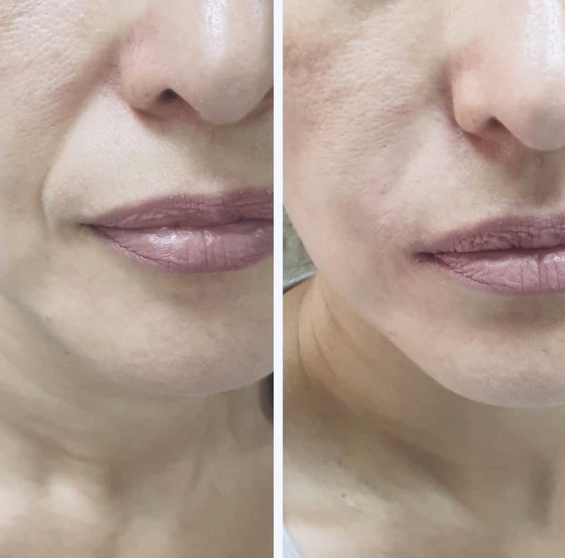 Увеличение губ