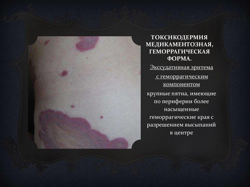Токсикодермия. фото, симптомы и лечение у детей, взрослых, диагностика, препараты, диета